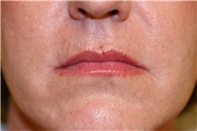 Lip Augmentation / Enhancement After Photo by Steve Laverson, MD; San Diego, CA - Case 41473
