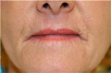Lip Augmentation / Enhancement Before Photo by Steve Laverson, MD; San Diego, CA - Case 41473