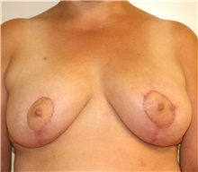 Breast Reduction After Photo by Steve Laverson, MD; San Diego, CA - Case 41478