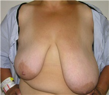 Breast Reduction Before Photo by Steve Laverson, MD; San Diego, CA - Case 41478