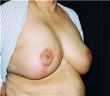 Breast Reduction After Photo by Steve Laverson, MD; San Diego, CA - Case 41479