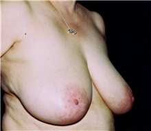 Breast Reduction Before Photo by Steve Laverson, MD; San Diego, CA - Case 41479