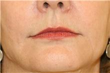 Lip Augmentation / Enhancement After Photo by Steve Laverson, MD; San Diego, CA - Case 41513