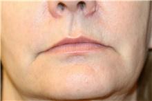 Lip Augmentation / Enhancement Before Photo by Steve Laverson, MD; San Diego, CA - Case 41513