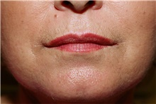 Lip Augmentation / Enhancement After Photo by Steve Laverson, MD; San Diego, CA - Case 41514