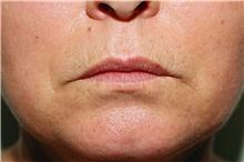 Lip Augmentation / Enhancement Before Photo by Steve Laverson, MD; San Diego, CA - Case 41514