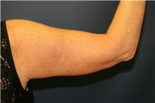 Arm Lift After Photo by Steve Laverson, MD; San Diego, CA - Case 41516