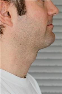 Neck Lift After Photo by Steve Laverson, MD; San Diego, CA - Case 41517