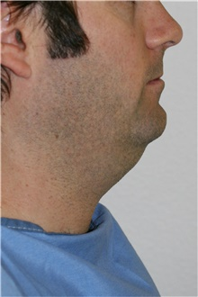 Neck Lift Before Photo by Steve Laverson, MD; San Diego, CA - Case 41517