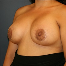 Breast Lift After Photo by Steve Laverson, MD; San Diego, CA - Case 41542