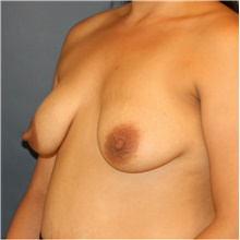 Breast Lift Before Photo by Steve Laverson, MD; San Diego, CA - Case 41542