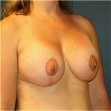 Breast Lift After Photo by Steve Laverson, MD; San Diego, CA - Case 41552