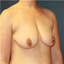 Breast Lift Before Photo by Steve Laverson, MD; San Diego, CA - Case 41552