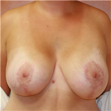 Breast Lift After Photo by Steve Laverson, MD; San Diego, CA - Case 41553
