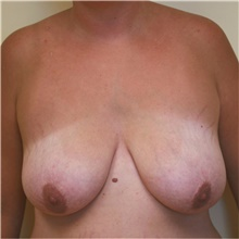 Breast Lift Before Photo by Steve Laverson, MD; San Diego, CA - Case 41553