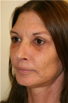 Facelift After Photo by Steve Laverson, MD; San Diego, CA - Case 41562