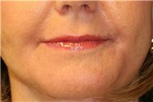 Lip Augmentation / Enhancement After Photo by Steve Laverson, MD; San Diego, CA - Case 41607