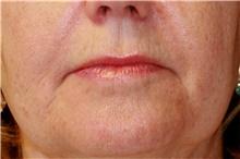 Lip Augmentation / Enhancement Before Photo by Steve Laverson, MD; San Diego, CA - Case 41607