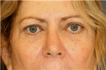Eyelid Surgery After Photo by Steve Laverson, MD; San Diego, CA - Case 41631