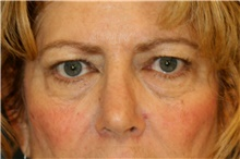 Eyelid Surgery Before Photo by Steve Laverson, MD; San Diego, CA - Case 41631