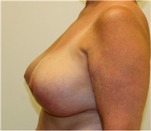 Breast Reduction After Photo by Steve Laverson, MD; San Diego, CA - Case 41644