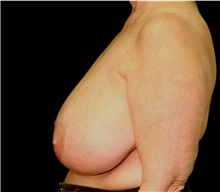 Breast Reduction Before Photo by Steve Laverson, MD; San Diego, CA - Case 41644