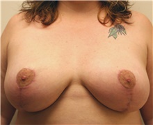 Breast Reduction After Photo by Steve Laverson, MD; San Diego, CA - Case 41645