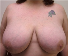 Breast Reduction Before Photo by Steve Laverson, MD; San Diego, CA - Case 41645