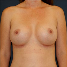 Breast Augmentation After Photo by Steve Laverson, MD; San Diego, CA - Case 41654