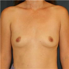 Breast Augmentation Before Photo by Steve Laverson, MD; San Diego, CA - Case 41654