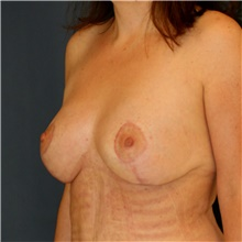 Breast Lift After Photo by Steve Laverson, MD; San Diego, CA - Case 41664