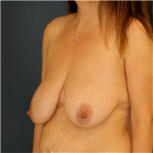 Breast Lift Before Photo by Steve Laverson, MD; San Diego, CA - Case 41664