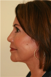 Facelift After Photo by Steve Laverson, MD; San Diego, CA - Case 41690