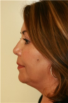 Facelift Before Photo by Steve Laverson, MD; San Diego, CA - Case 41690