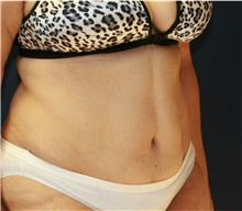 Tummy Tuck After Photo by Steve Laverson, MD; San Diego, CA - Case 41702