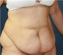 Tummy Tuck Before Photo by Steve Laverson, MD; San Diego, CA - Case 41702