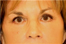 Eyelid Surgery After Photo by Steve Laverson, MD; San Diego, CA - Case 41709