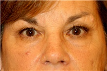 Eyelid Surgery Before Photo by Steve Laverson, MD; San Diego, CA - Case 41709