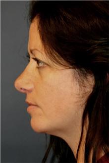 Rhinoplasty After Photo by Steve Laverson, MD; San Diego, CA - Case 41794