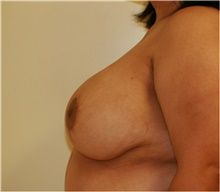Breast Reduction After Photo by Steve Laverson, MD; San Diego, CA - Case 41936