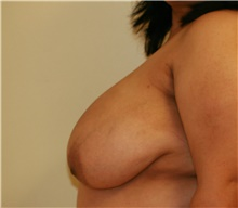 Breast Reduction Before Photo by Steve Laverson, MD; San Diego, CA - Case 41936