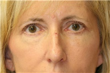 Eyelid Surgery After Photo by Steve Laverson, MD; San Diego, CA - Case 41979