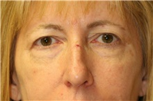 Eyelid Surgery Before Photo by Steve Laverson, MD; San Diego, CA - Case 41979