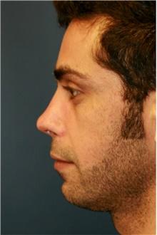Rhinoplasty After Photo by Steve Laverson, MD; San Diego, CA - Case 41987