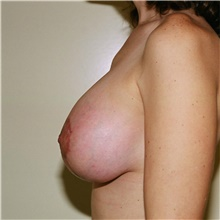 Breast Lift After Photo by Steve Laverson, MD; San Diego, CA - Case 42016