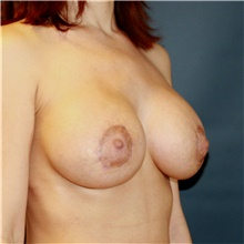 Breast Implant Revision After Photo by Steve Laverson, MD; San Diego, CA - Case 42024