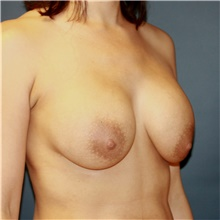 Breast Implant Revision Before Photo by Steve Laverson, MD; San Diego, CA - Case 42024