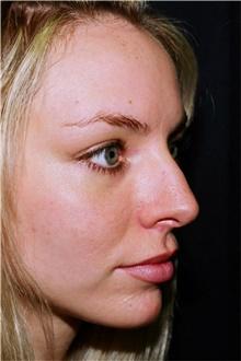 Rhinoplasty Before Photo by Steve Laverson, MD; San Diego, CA - Case 42026