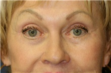 Eyelid Surgery After Photo by Steve Laverson, MD; San Diego, CA - Case 42029