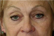 Eyelid Surgery Before Photo by Steve Laverson, MD; San Diego, CA - Case 42029